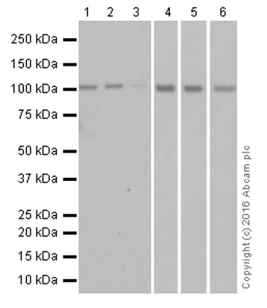 Western blot - Anti-ABCG1 antibody [EP1366Y] (ab52617)