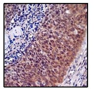 Immunohistochemistry (Formalin/PFA-fixed paraffin-embedded sections) - Anti-ABCG1 antibody [EP1366Y] (ab52617)