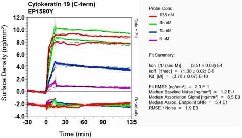 其他抗细胞角蛋白19抗体[EP1580Y] - Cytoskeleton Marker(AB52625)