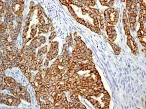 免疫组化(福尔马林/PFA固定石蜡切片)抗细胞角蛋白19抗体[EP1580Y] - Cytoskeleton Marker(AB52625)