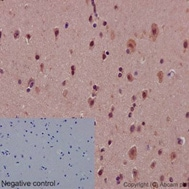Immunohistochemistry (Formalin/PFA-fixed paraffin-embedded sections) - Anti-Notch1 antibody [EP1238Y] (ab52627)
