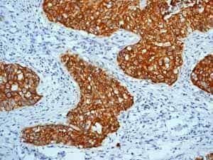 免疫组织化学(福尔马林/PFA固定石蜡包埋切片)-抗细胞角蛋白5抗体[EP1601Y]-细胞骨架标记(ab52635)