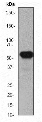 免疫印迹-抗细胞角蛋白5抗体[EP1601Y]-细胞骨架标记(ab52635)