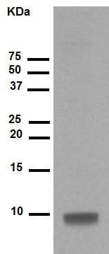 免疫印迹-抗S100β抗体[EP1576Y]-星形胶质细胞标记(ab52642)