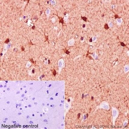 免疫组织化学(福尔马林/PFA固定石蜡切片)-抗S100β抗体[EP1576Y]-星形胶质细胞标记(ab52642)