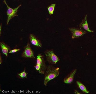 Immunocytochemistry/ Immunofluorescence - Anti-LDL Receptor antibody [EP1553Y] (ab52818)