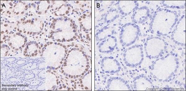 Immunohistochemistry (Formalin/PFA-fixed paraffin-embedded sections) - Anti-Smad3 (phospho S423 + S425) antibody [EP823Y] (ab52903)