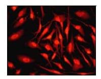 Immunocytochemistry/ Immunofluorescence - Anti-Smad3 (phospho S423 + S425) antibody [EP823Y] (ab52903)