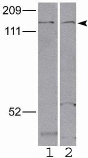 Western blot - Anti-ApoER2 antibody (ab52905)