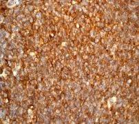免疫组织化学(福尔马林/PFA固定石蜡切片)-抗HLA A抗体[EP1395Y](ab52922)