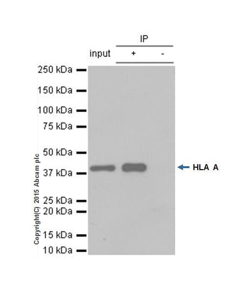 免疫沉淀-抗HLA A抗体[EP1395Y](ab52922)