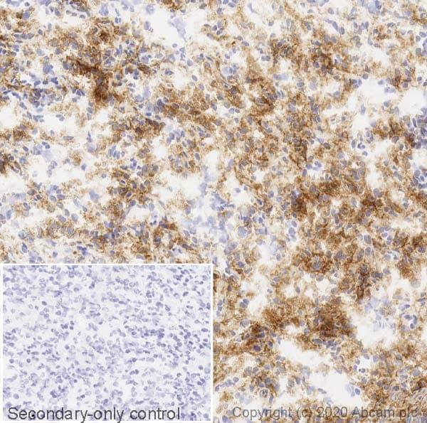 Immunohistochemistry (Frozen sections) - Anti-MERTK antibody [Y323] (ab52968)