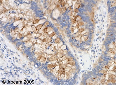Immunohistochemistry (Formalin/PFA-fixed paraffin-embedded sections) - Anti-p15 INK4b antibody (ab53034)