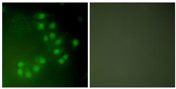 Immunocytochemistry/ Immunofluorescence - Anti-p63 antibody (ab53039)