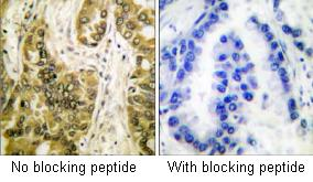 Immunohistochemistry (Formalin/PFA-fixed paraffin-embedded sections) - Anti-Galectin 3 antibody (ab53082)