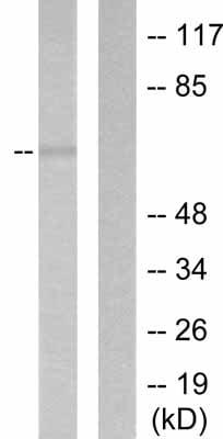 Western blot - Anti-MMP16 antibody (ab53145)