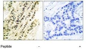 Immunohistochemistry (Formalin/PFA-fixed paraffin-embedded sections) - Anti-Serum Response Factor SRF antibody (ab53147)