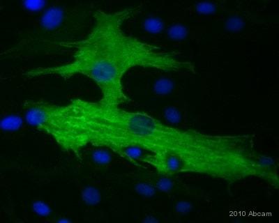 Immunocytochemistry/ Immunofluorescence - Anti-smooth muscle Myosin heavy chain 11 antibody (ab53219)