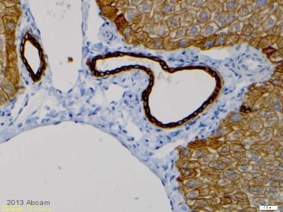Immunohistochemistry (Formalin/PFA-fixed paraffin-embedded sections) - Anti-Cytokeratin 8 antibody [EP1628Y] - Cytoskeleton Marker (ab53280)