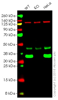Western blot - Anti-Lactate Dehydrogenase B/LDH-B antibody [EP1565Y] (ab53292)