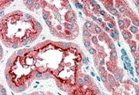 Immunohistochemistry (Formalin/PFA-fixed paraffin-embedded sections) - Anti-CPT1A antibody (ab53532)