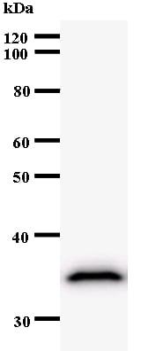 Western blot - Anti-ZNF544 antibody [3359C4a] (ab53675)