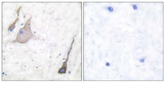 Immunohistochemistry (Formalin/PFA-fixed paraffin-embedded sections) - Anti-pan Synuclein antibody (ab53726)