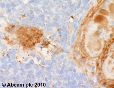 Immunohistochemistry (Formalin/PFA-fixed paraffin-embedded sections) - Anti-Biglycan antibody (ab54855)