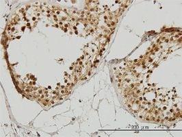 IHC-P - IRAK antibody (ab55316)