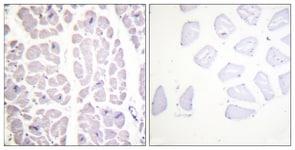 Immunohistochemistry (Formalin/PFA-fixed paraffin-embedded sections) - Anti-IKK alpha + IKK beta (phospho S180 + S181) antibody (ab55341)