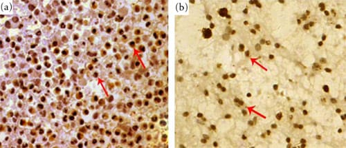 Immunohistochemistry (Formalin/PFA-fixed paraffin-embedded sections) - Anti-MPG antibody (ab55461)