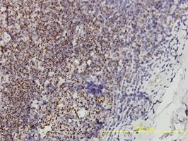 Immunohistochemistry (Formalin/PFA-fixed paraffin-embedded sections) - Prohibitin antibody (ab55618)