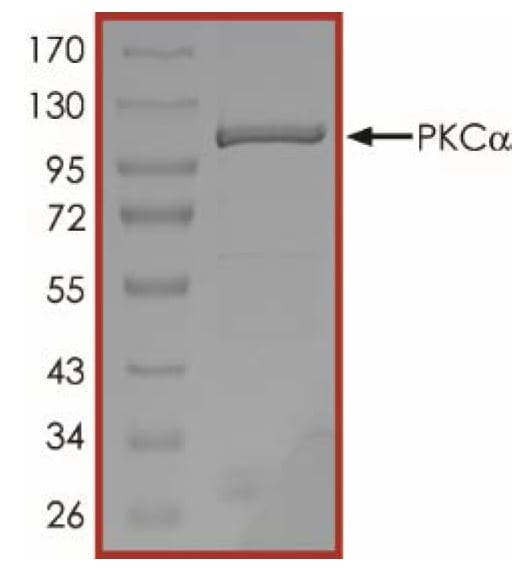 SDS-PAGE重组人PKCα蛋白(AB55 672)