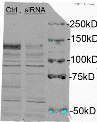 Western blot - Anti-4E-T antibody (ab55881)