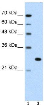 Western blot - Anti-FOXR2 antibody (ab55961)