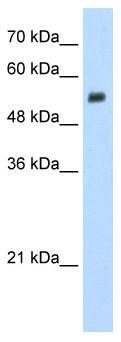 Western blot - Anti-EVX2 antibody (ab56209)