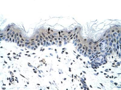Immunohistochemistry (Formalin/PFA-fixed paraffin-embedded sections) - Anti-Nav1.5 antibody (ab56240)