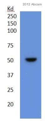 Western blot - Anti-ADAM17 antibody (ab57484)