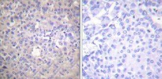 Immunohistochemistry (Paraffin-embedded sections) - IRS1 (phospho S612) antibody (ab58479)