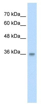 Western blot - Anti-TraB domain containing antibody (ab58607)