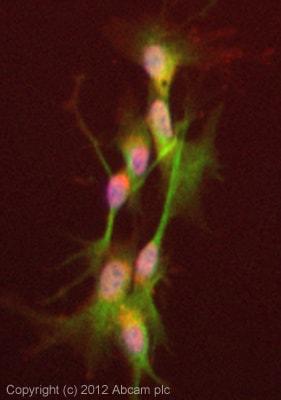Immunocytochemistry/ Immunofluorescence - Anti-Visfatin antibody (ab58640)