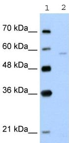 Western blot - Anti-SLC22A7 antibody (ab58683)