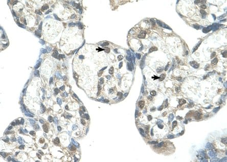 Immunohistochemistry (Formalin/PFA-fixed paraffin-embedded sections) - Anti-EPS8L1 antibody (ab58687)