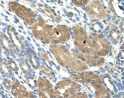 Immunohistochemistry (Formalin/PFA-fixed paraffin-embedded sections) - Anti-SLC1A5 antibody (ab58690)
