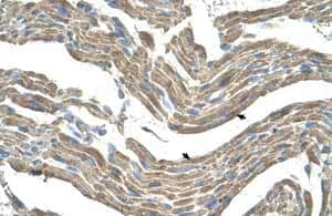 Immunohistochemistry (Formalin/PFA-fixed paraffin-embedded sections) - Anti-Asporin antibody (ab58741)