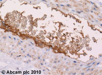 Immunohistochemistry (Formalin/PFA-fixed paraffin-embedded sections) - Anti-C4d antibody, prediluted (ab58781)