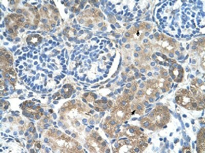 Immunohistochemistry (Formalin/PFA-fixed paraffin-embedded sections) - Anti-SLC38A4 antibody (ab58785)