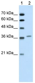 Western blot - Anti-ALAD antibody (ab59013)