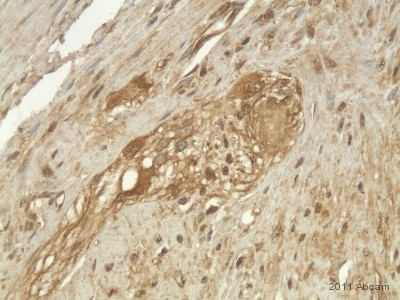 Immunohistochemistry (Formalin/PFA-fixed paraffin-embedded sections) - Anti-GALR1 antibody (ab59025)