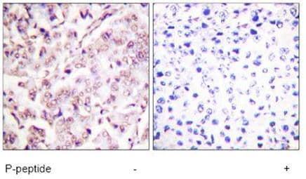Immunohistochemistry (Formalin/PFA-fixed paraffin-embedded sections) - Anti-ETS1 (phospho T38) antibody (ab59179)